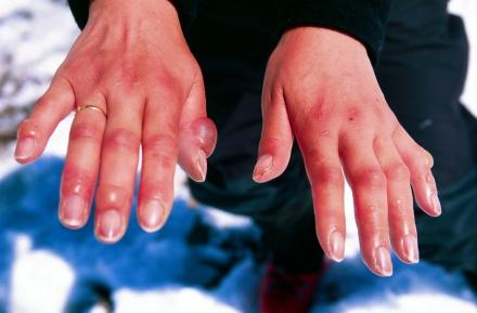 frostbitten_hands
